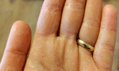 Așa arată mâinile medicilor de la ATI Cluj, secție COVID