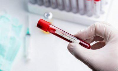 Puţin peste 1.000 de infectări cu COVID-19  în ultimele 24 de ore, în România